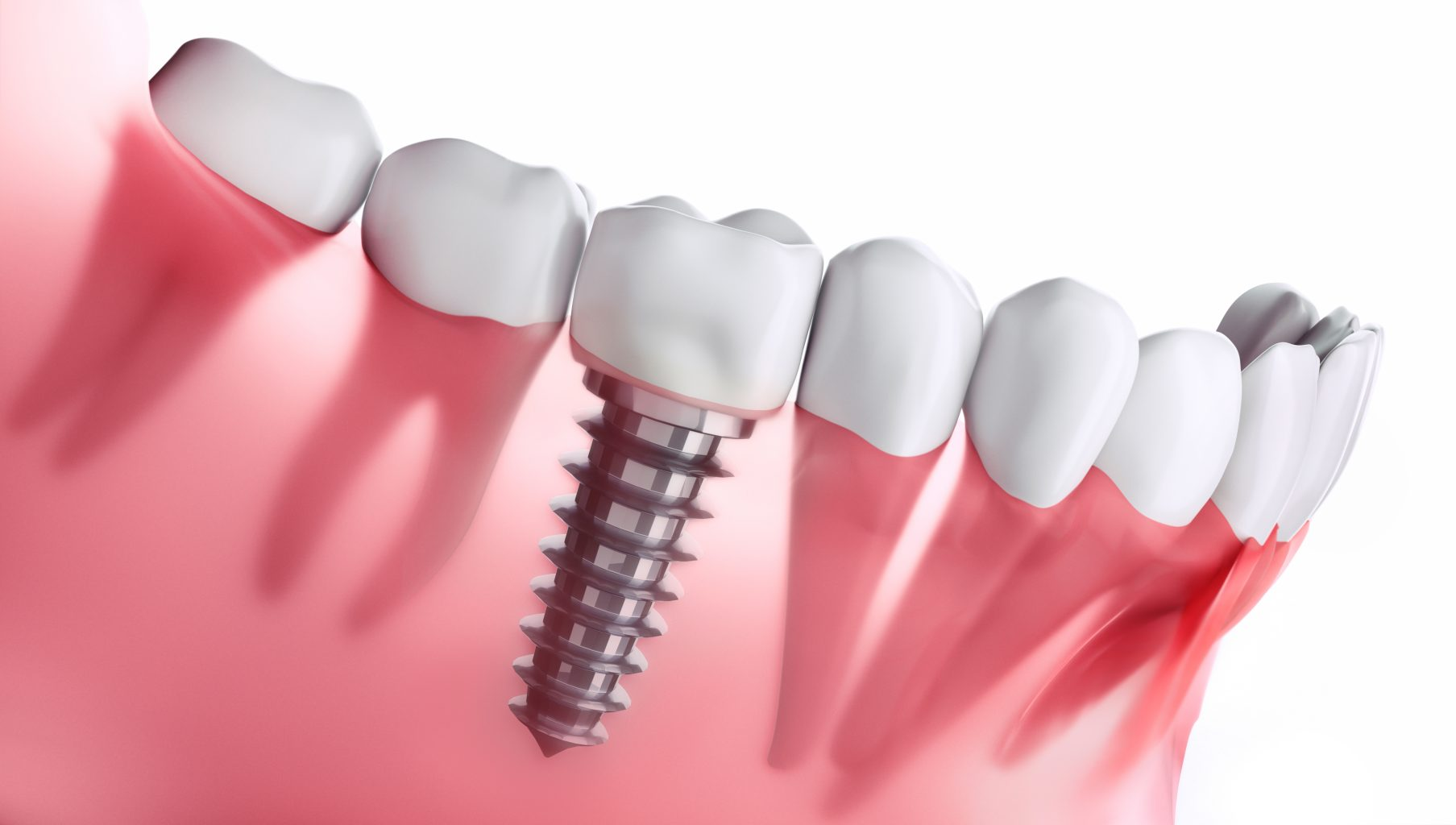 Zahnimplantat Im Unterkiefer