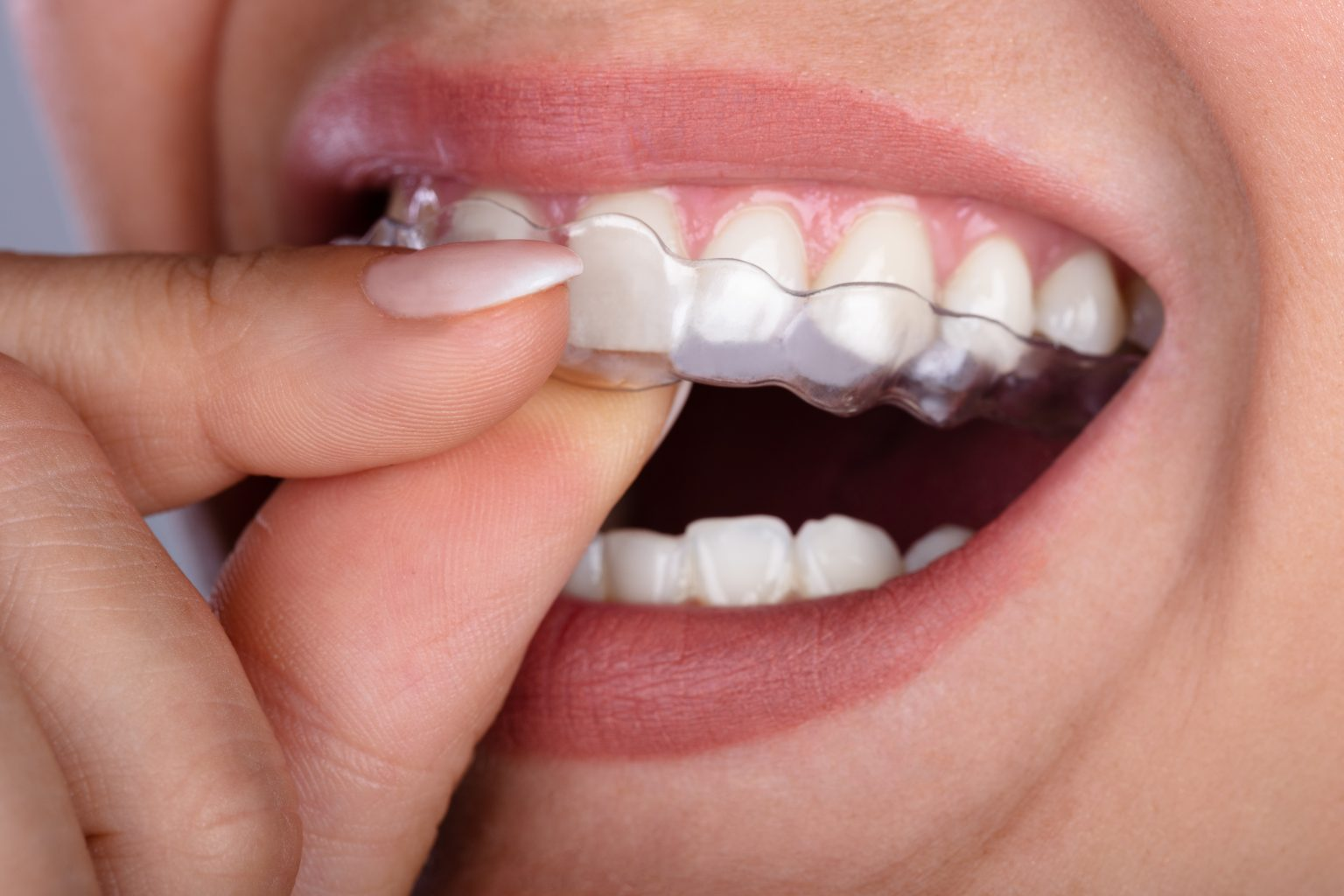 Woman Putting Transparent Aligner In Teeth
