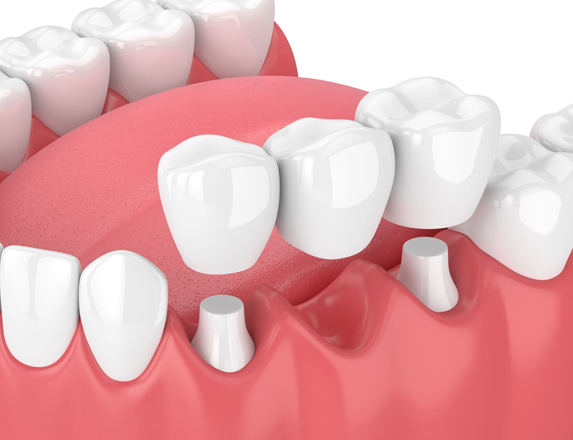 What Are Dental Bridges.jpg