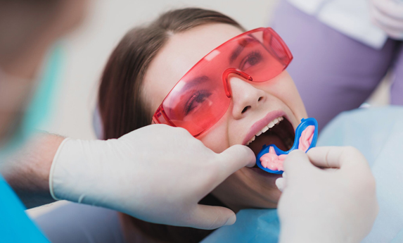What Is A Professional Fluoride Treatment.jpg