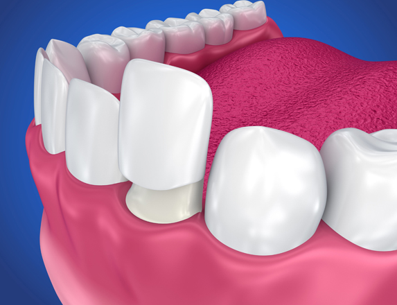 What Are Dental Crowns.jpg